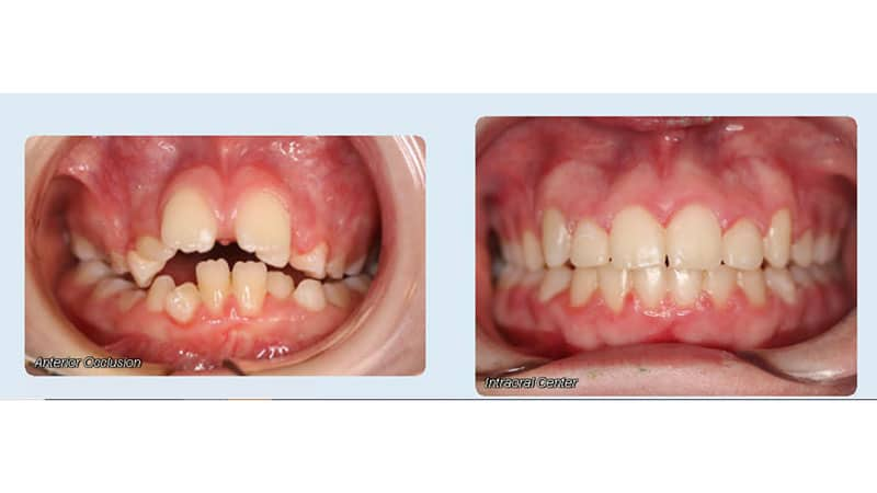 Before and after Faber Orthodontics in Melville, NY